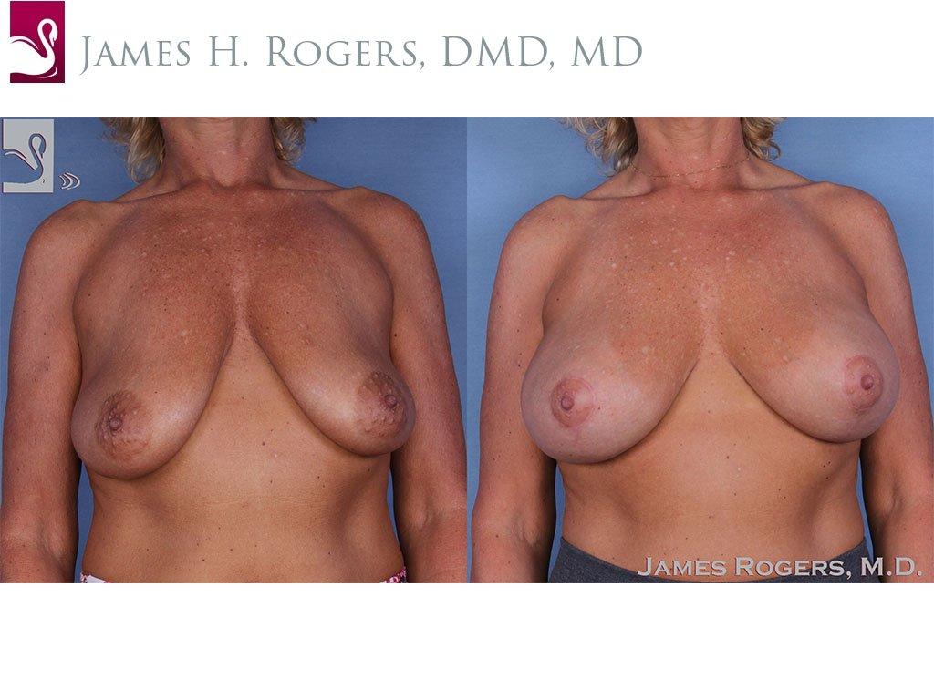 Breast Augmentation Case #56712 (Image 1)