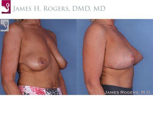 Breast Augmentation Case #56712 (Image 2)