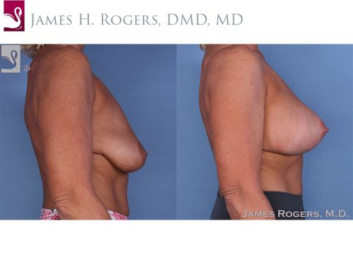 Breast Augmentation Case #56712 (Image 3)