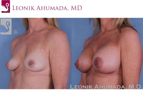 Breast Augmentation Case #59422 (Image 2)