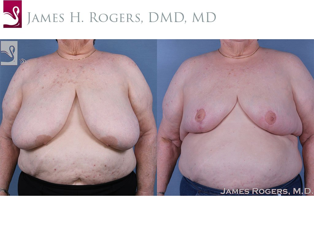 Female Breast Reduction Case #60823 (Image 1)