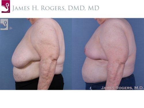 Female Breast Reduction Case #60823 (Image 3)