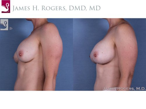 Breast Revisions Case #41484 (Image 3)
