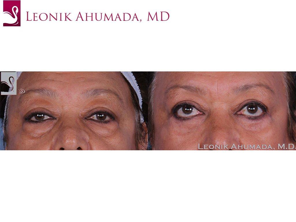 Eyelid Surgery Case #58346 (Image 1)