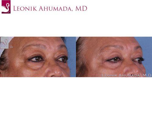 Eyelid Surgery Case #58346 (Image 2)