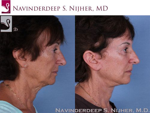 Face Lift Case #58359 (Image 3)