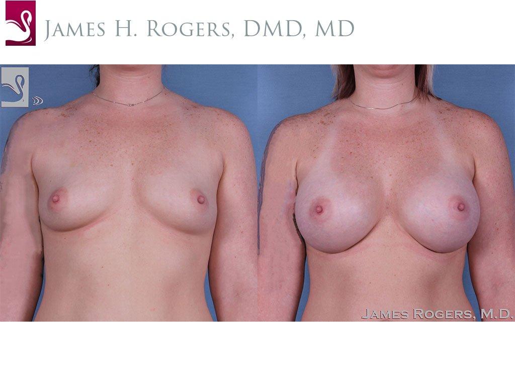 Breast Augmentation Case #60414 (Image 1)