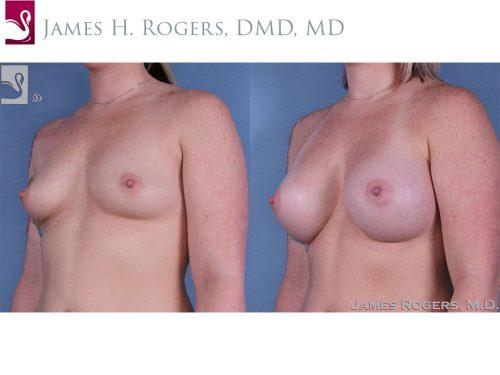 Breast Augmentation Case #60414 (Image 2)