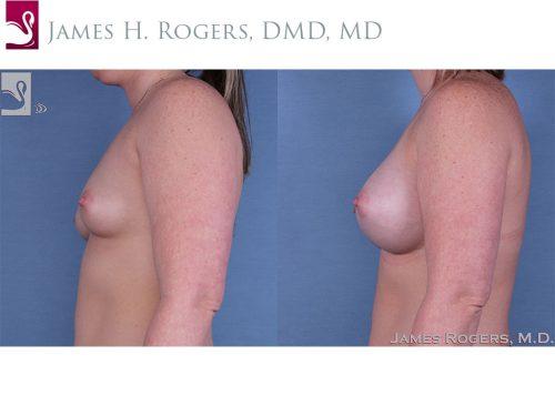 Breast Augmentation Case #60414 (Image 3)