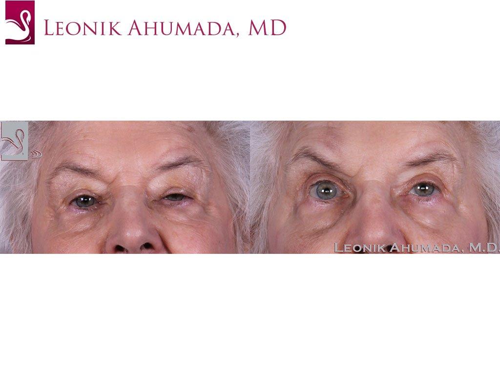 Eyelid Surgery Case #61042 (Image 1)