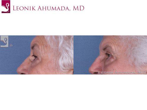 Eyelid Surgery Case #61042 (Image 3)