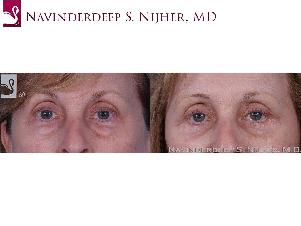 Eyelid Surgery Case #61075 (Image 1)