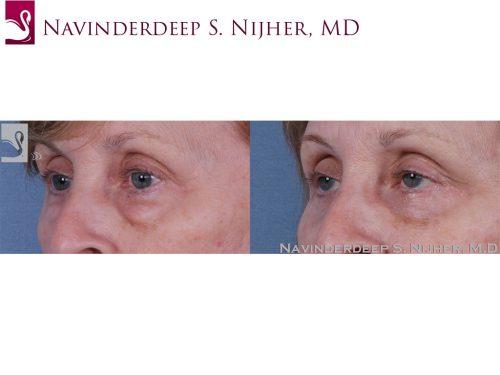Eyelid Surgery Case #61075 (Image 2)