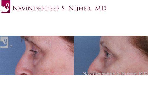 Eyelid Surgery Case #61075 (Image 3)
