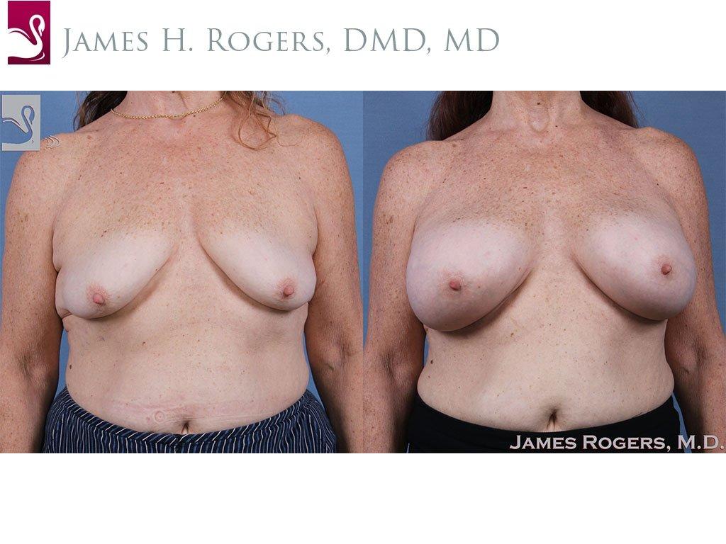 Breast Augmentation Case #61426 (Image 1)