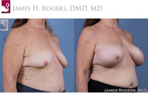 Breast Augmentation Case #61426 (Image 2)