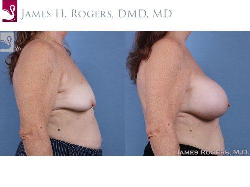 Breast Augmentation Case #61426 (Image 3)