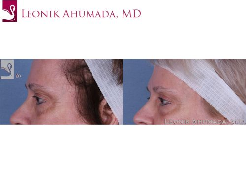 Eyelid Surgery Case #59629 (Image 3)