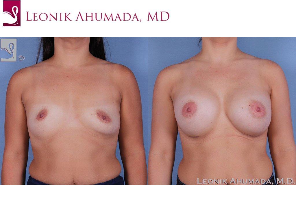 Breast Augmentation Case #61701 (Image 1)