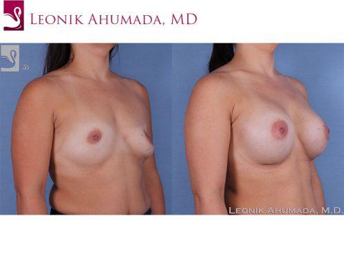 Breast Augmentation Case #61701 (Image 2)