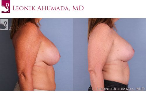 Breast Revisions Case #58041 (Image 3)