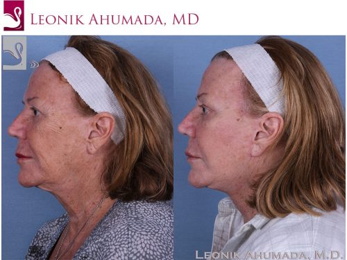 Face Lift Case #58747 (Image 3)