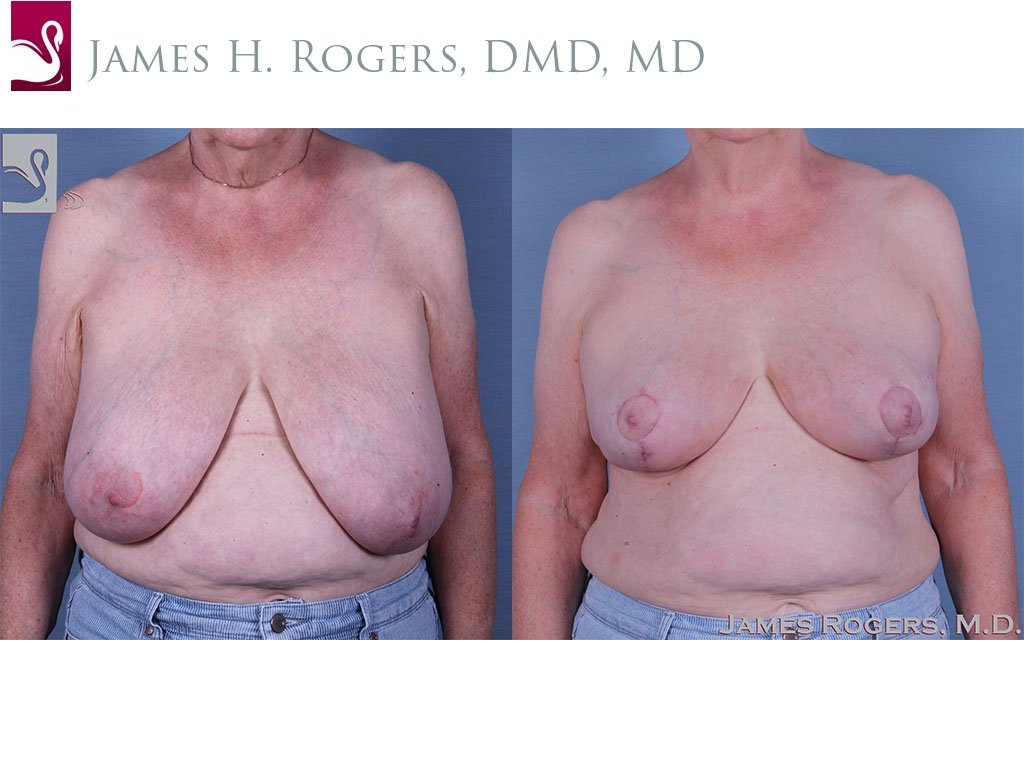 Female Breast Reduction Case #61041 (Image 1)