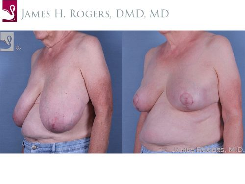 Female Breast Reduction Case #61041 (Image 2)