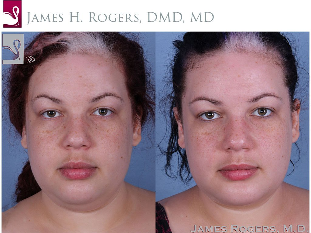 Facial Implants Case #56553 (Image 1)