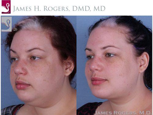 Facial Implants Case #56553 (Image 2)