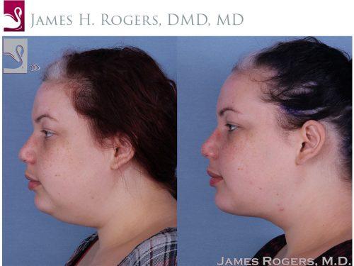 Facial Implants Case #56553 (Image 3)