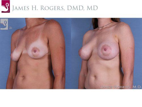 Breast Augmentation Case #60705 (Image 2)