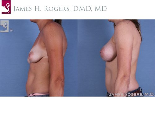 Breast Augmentation Case #60705 (Image 3)