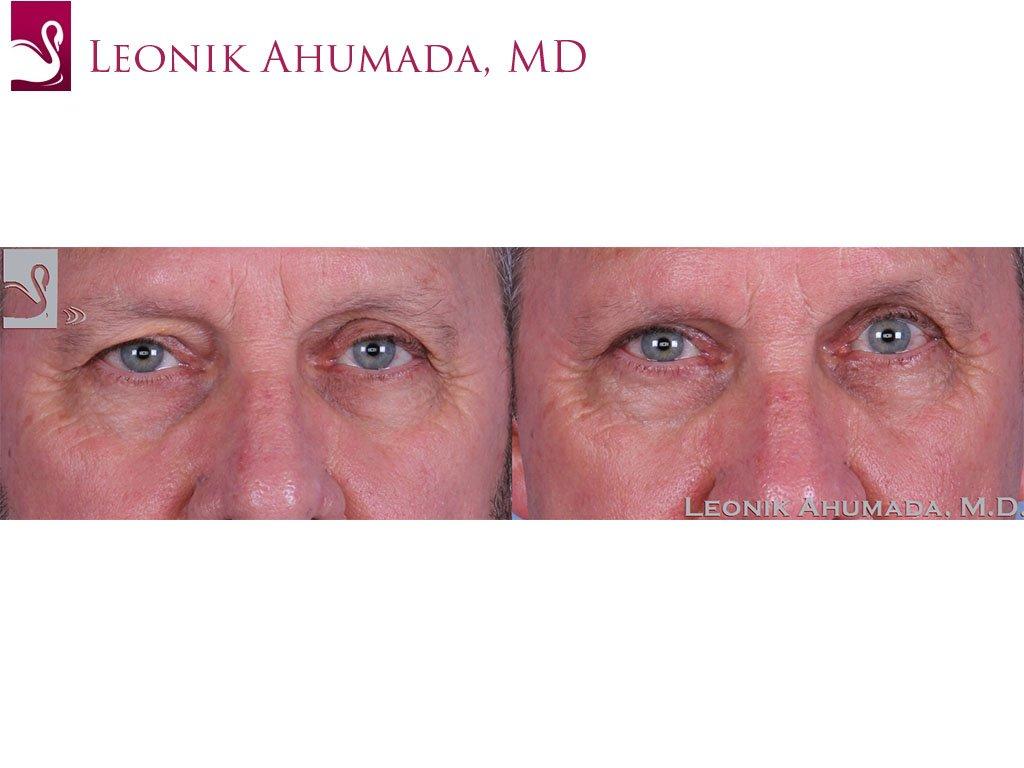 Eyelid Surgery Case #61963 (Image 1)