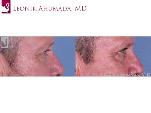 Eyelid Surgery Case #61963 (Image 3)