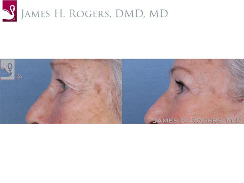 Eyelid Surgery Case #60032 (Image 3)