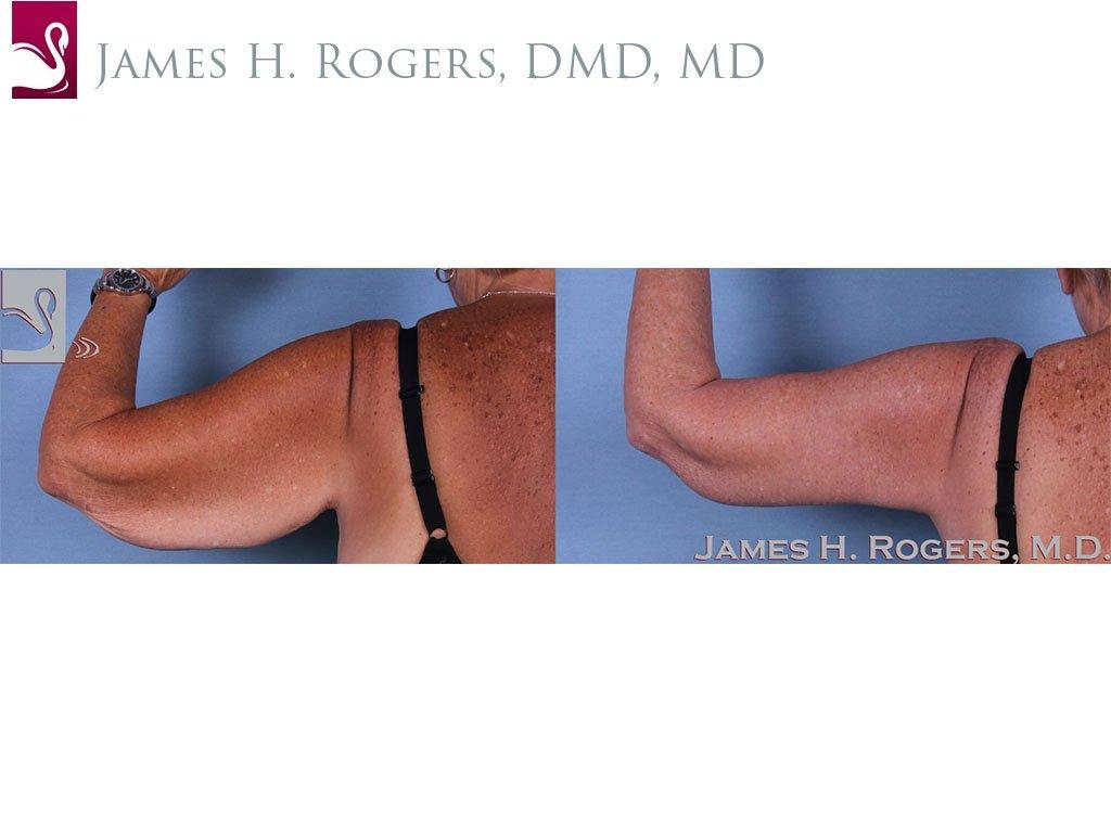 Arm Lift Case #60263 (Image 1)