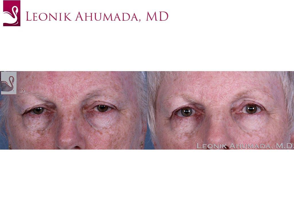 Eyelid Surgery Case #60426 (Image 1)