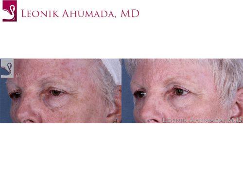 Eyelid Surgery Case #60426 (Image 2)
