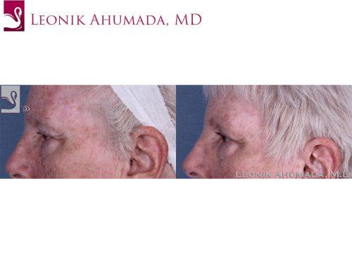 Eyelid Surgery Case #60426 (Image 3)