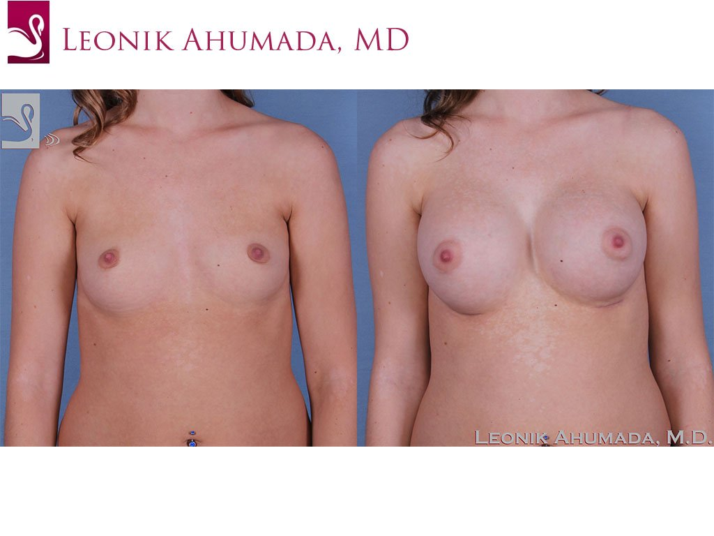 Breast Augmentation Case #60985 (Image 1)