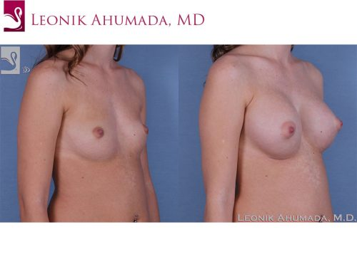 Breast Augmentation Case #60985 (Image 2)