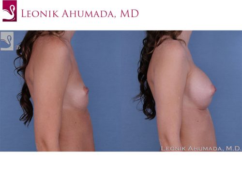 Breast Augmentation Case #60985 (Image 3)