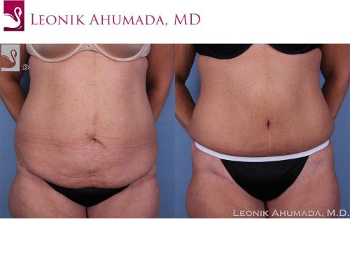 Before and after image of a real plastic surgery procedure performed by Dr. Ahumada.