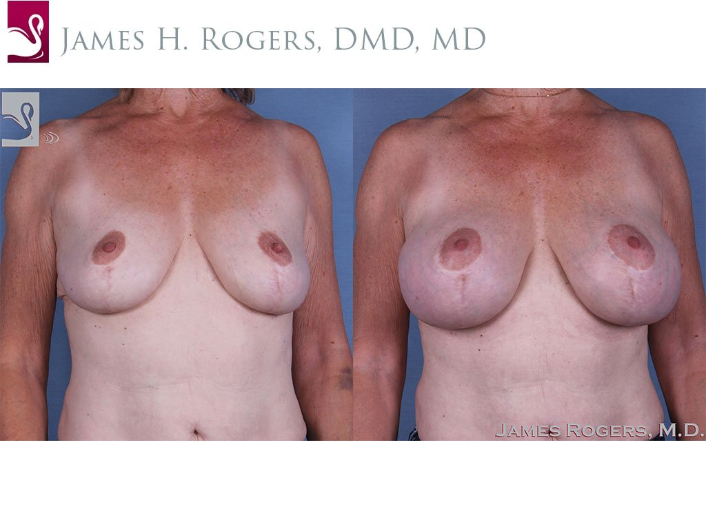 Breast Augmentation with Mastopexy (Breast Lift) Case #45284 (Image 1)