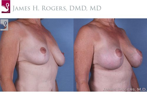 Breast Augmentation with Mastopexy (Breast Lift) Case #45284 (Image 2)