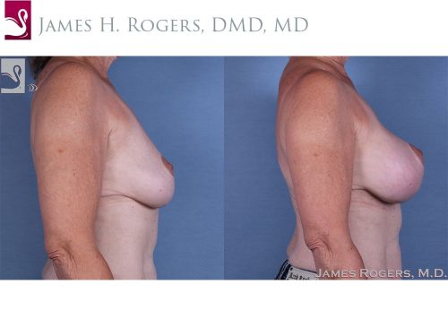 Breast Augmentation with Mastopexy (Breast Lift) Case #45284 (Image 3)