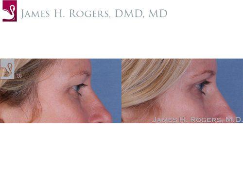 Eyelid Surgery Case #51001 (Image 3)