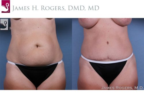 Abdominoplasty (Tummy Tuck) Case #59754 (Image 1)