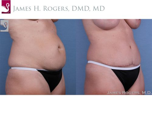 Abdominoplasty (Tummy Tuck) Case #59754 (Image 2)